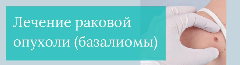 Удаление базалиомы в Москве