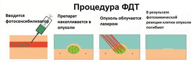 Фотодинамическая терапия ( ФДТ)