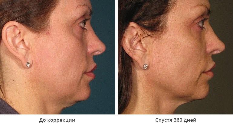 Ulthera System Идеальное лицо без боли и операции