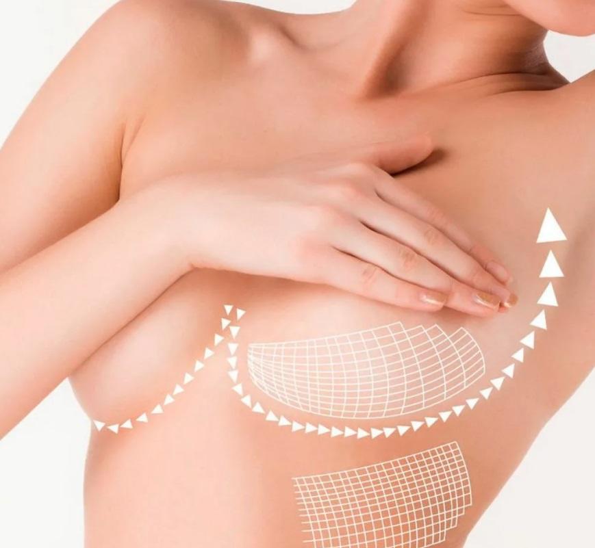 Увеличение груди в летнее время, мифы и преимущества летней маммопластики