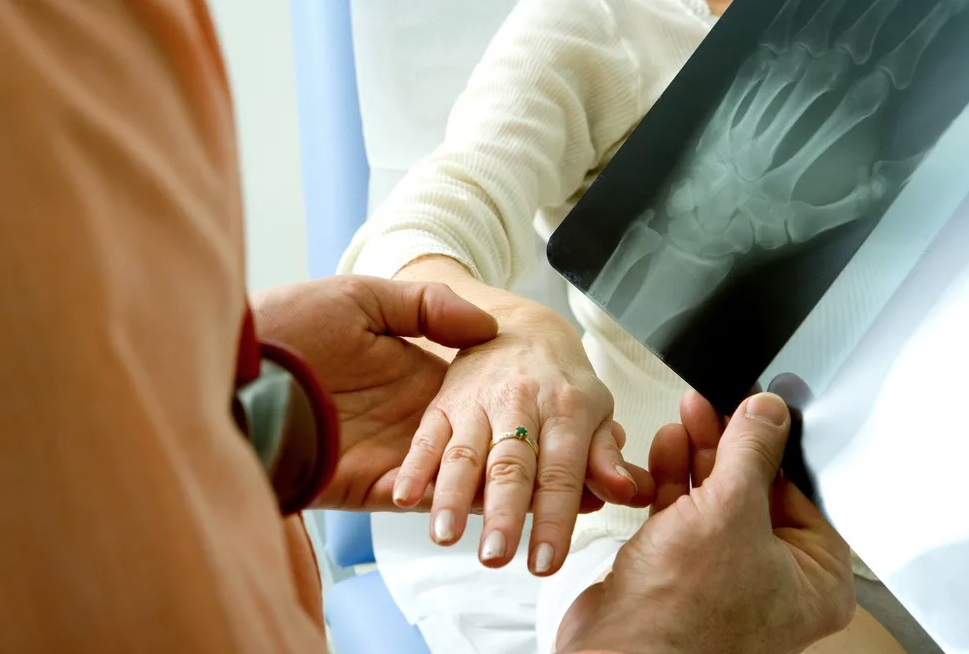 Ревматоидный артрит, симптомы и признаки подверженности заболеванию