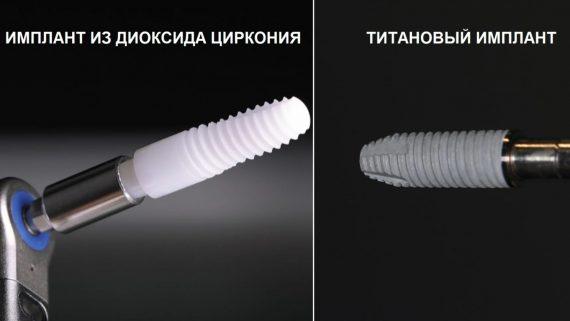 Какие импланты ставить - титановые или циркониевые? Чем отличаются и как выбирать при аллергии, мнение стоматологов